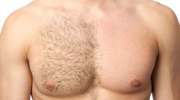 depilácia muž 1